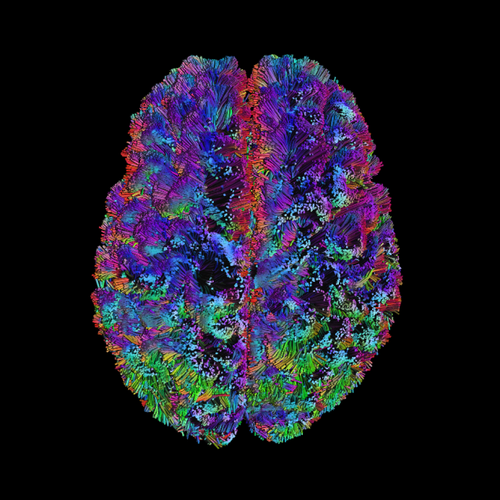 MRI Brain image 3.
