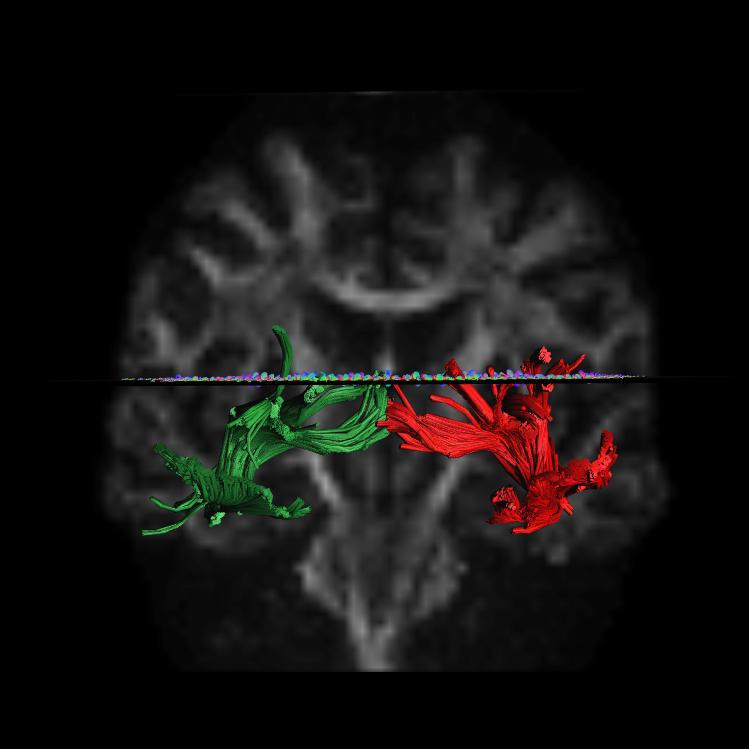 MRI Brain image 2.