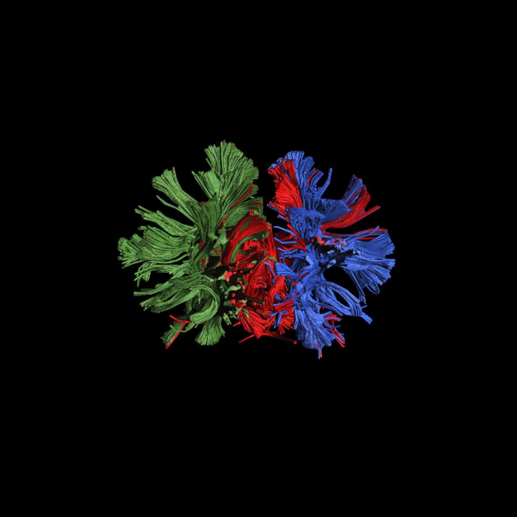 MRI Brain image 1.