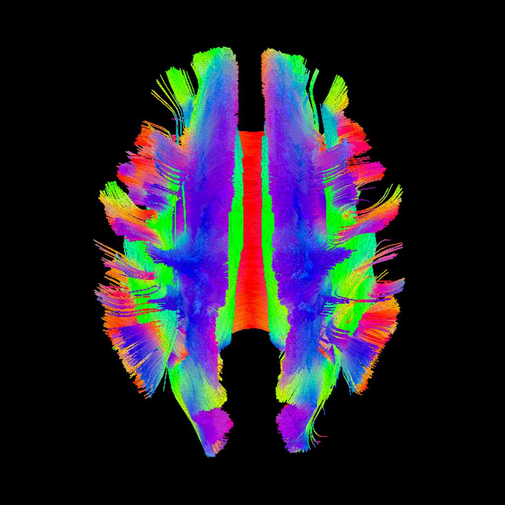 MRI Brain image 4.